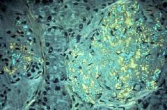 amiloidoserenal1