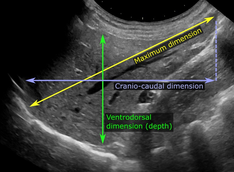 Liver_measurements_on_ultrasonography