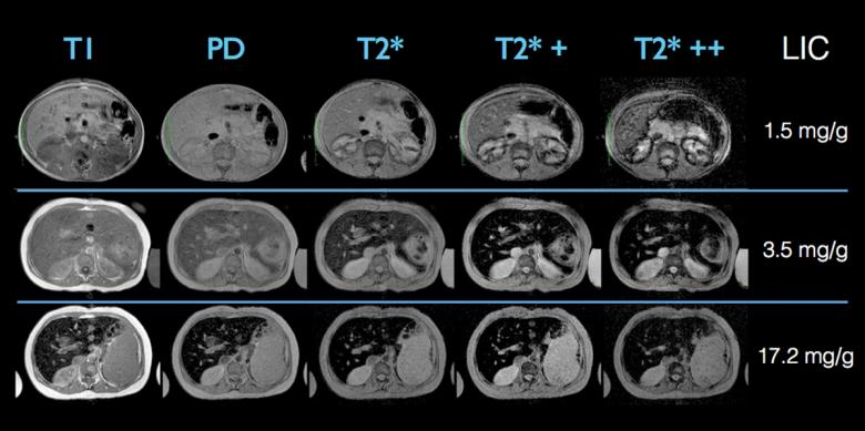 MRIiron