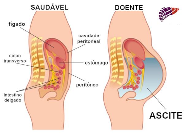 ASCITE600