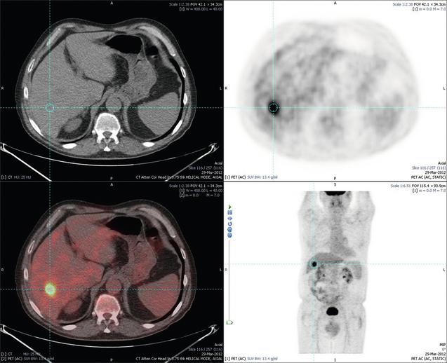 livermetastasis