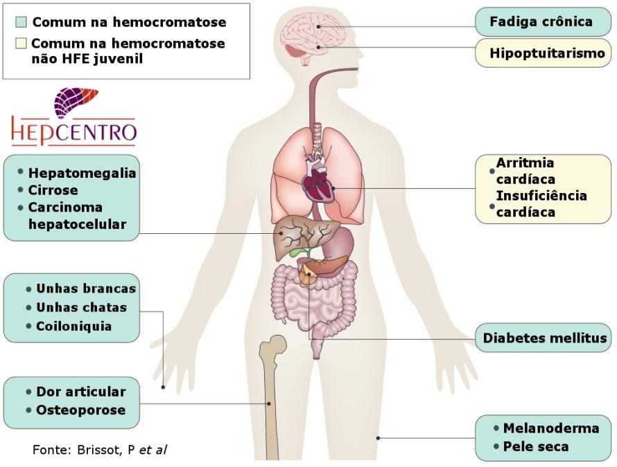 hemocromatosesintomas